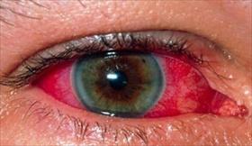 uveite, infiammazione tunica media vascolare dell'occhio